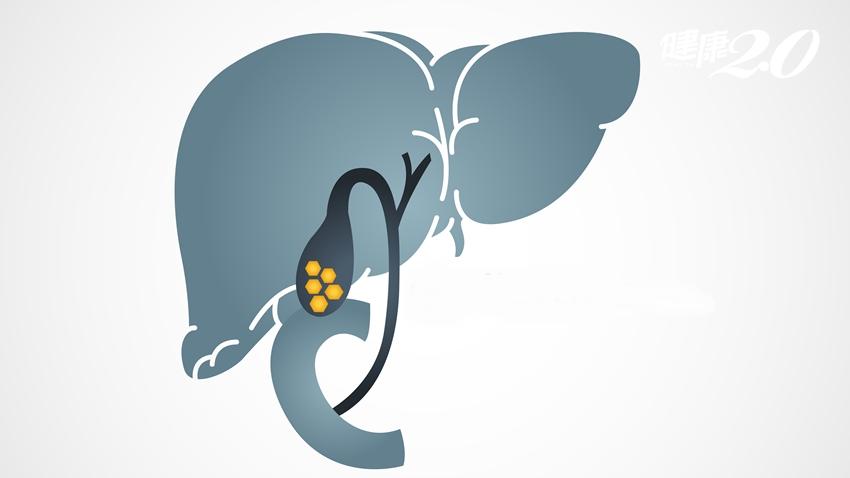 膽結石一定要開刀嗎?膽囊切除會有什麼影響?醫師分析2種手術優劣