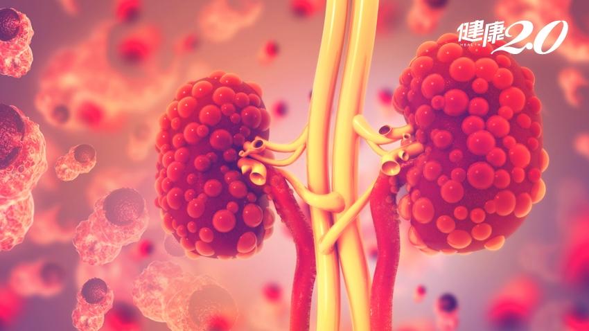 腎臟冒出一顆顆囊腫!「泡泡腎」會遺傳 如何延緩洗腎命運?