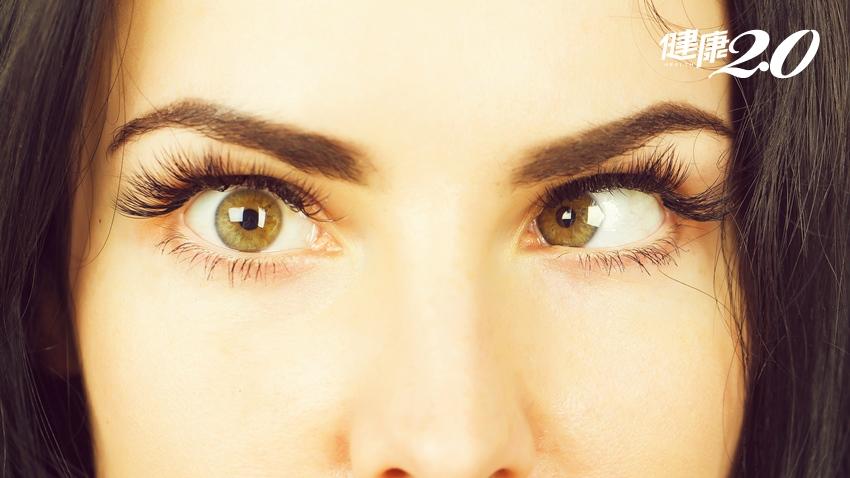 不是眼睛有問題!這些疾病也會眼睛脫窗複視