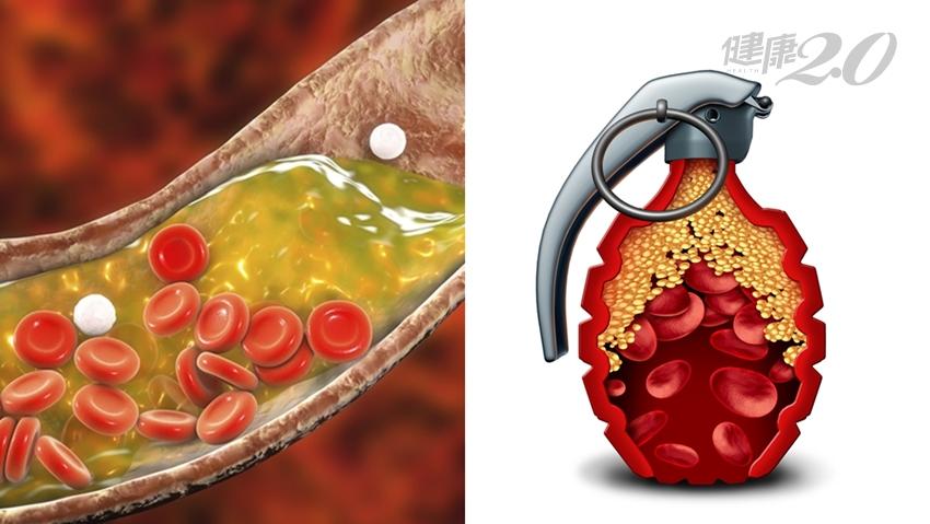 手腳長出黃色脂肪瘤,慎防心肌梗塞!醫師2招併用有效降血脂