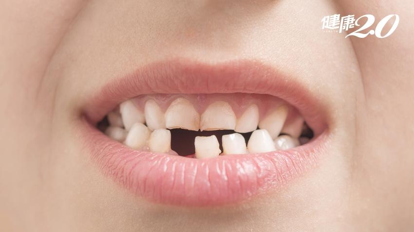 缺牙講話漏風怎麼辦?3大方法可補救,但最重要的是「這個」