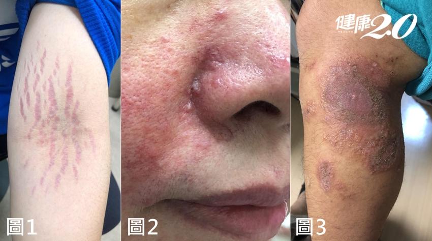 皮膚紅癢擦藥沒效?她臀部常會癢,顯微鏡下驚見「黴菌菌絲」