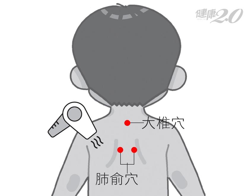 中醫抗感冒:吹風機暖背、每天揉穴位100次 打噴嚏流鼻水都緩解