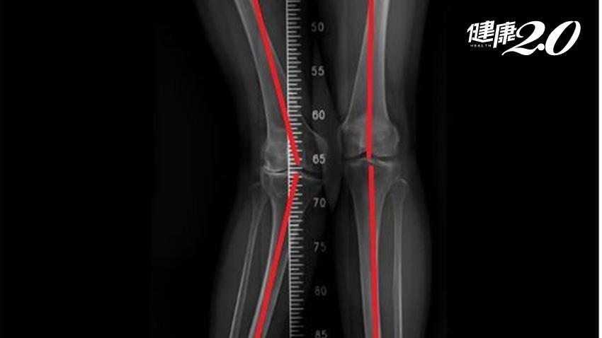人工膝關節置換術搶救阿嬤的X型腿 2周能走還能騎機車