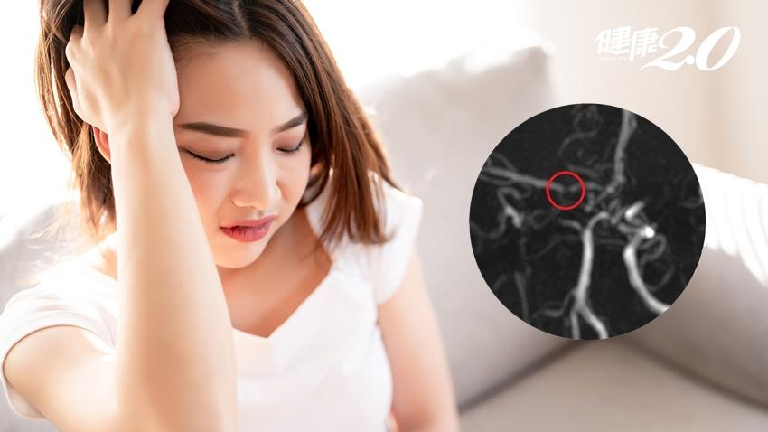 這種腦中風好發於女性!甲狀腺亢進、糖尿病、避孕藥都是危險因子
