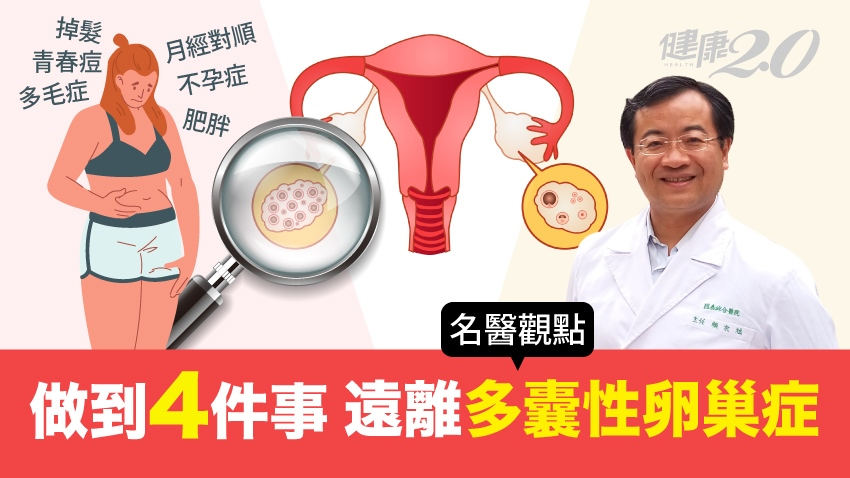 不只亂經、肥胖、多毛,得糖尿病機率也高!4招遠離多囊性卵巢症