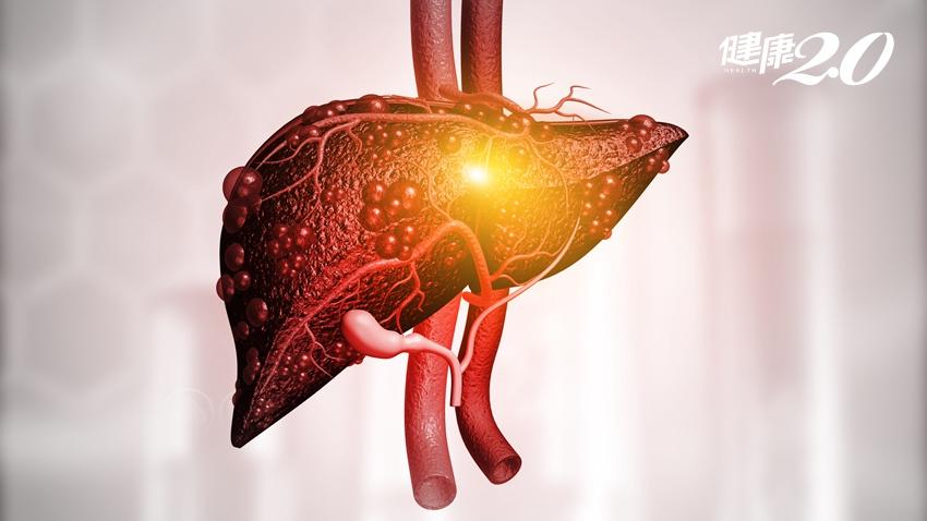 沒有B、C型肝炎也不喝酒,卻肝功能異常?3招狠甩脂肪肝