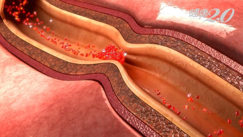 傷口難癒合?小心是「血管阻塞」了!周邊動脈血管阻塞有50%沒症狀