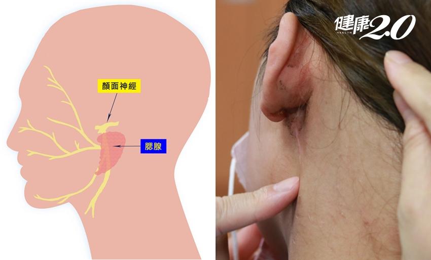 耳下小突起慢慢長成大湯圓!「腮腺腫瘤」害你顏面神經痛 還有癌變風險