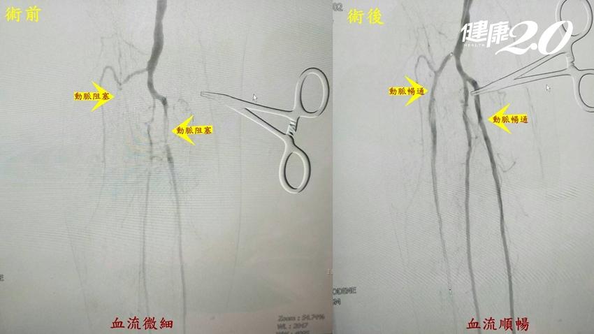 他輕忽小傷口左小腿慘截肢!周邊動脈阻塞早期症狀輕微 2狀況要警覺