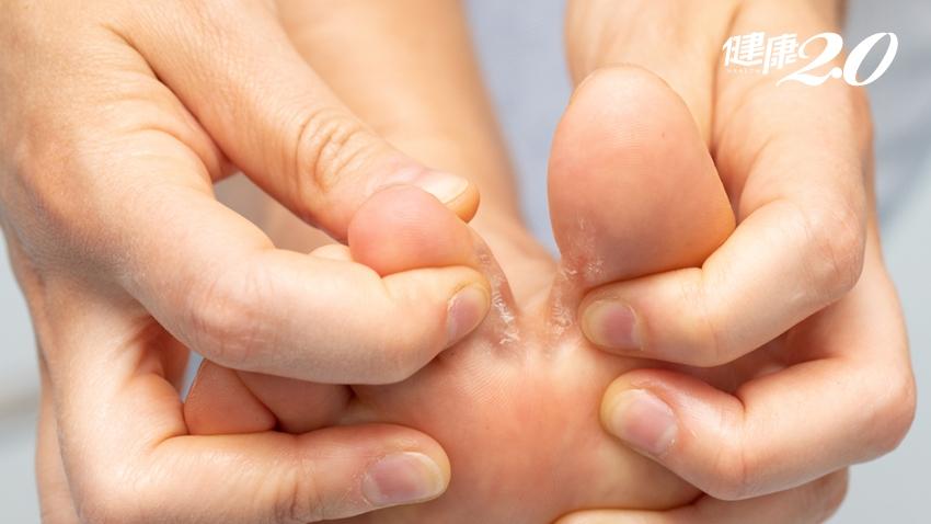 香港腳不一定會癢!為什麼都不會好?皮膚科醫師推薦「穿襪方式」