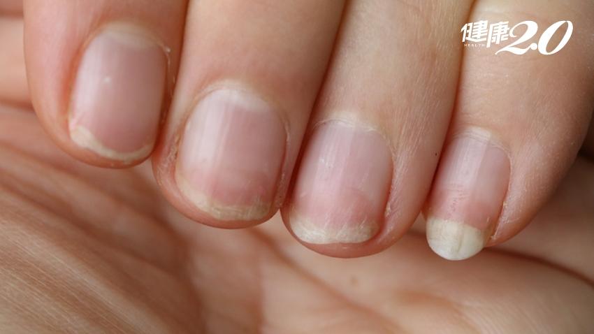 「指甲縫」暗藏千萬隻病菌!喜歡做這2件事 指甲縫比抹布還髒