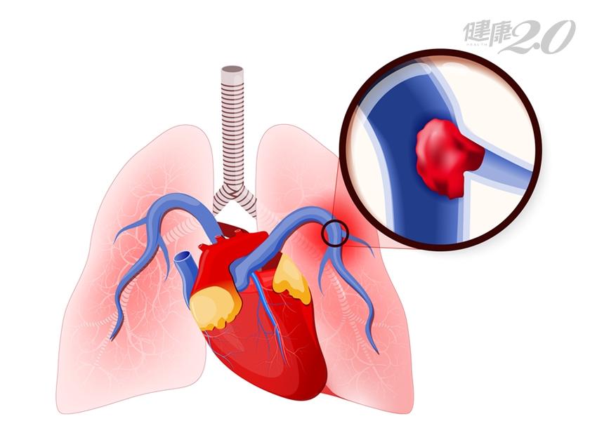 小心!6種栓塞可能害你沒命 肺栓塞、羊水栓塞最致命