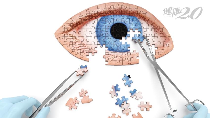 眼科名醫每天吃「雞蛋」護眼!預防白內障 應該吃這些食物