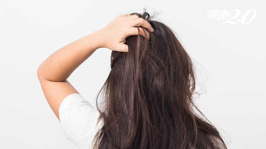 頭髮天天洗還是油?頭皮出油5大因素,其中3項是你的洗頭方式錯了