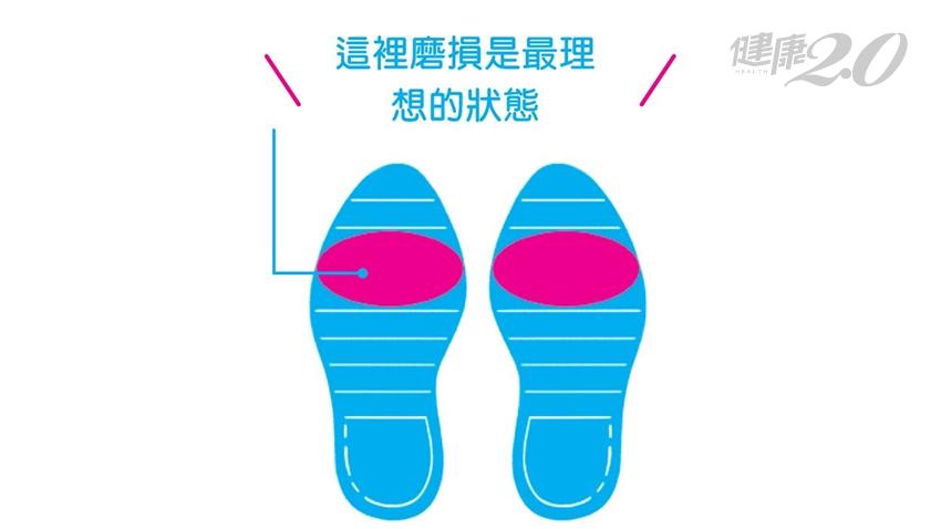 錯誤走路腿痛、膝蓋痛!揭密正確走路姿勢 走路不累又能瘦腿