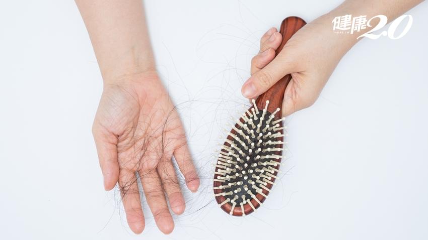 掉髮暗藏甲狀腺疾病!1招頭皮自我檢測、多吃3種養髮營養素