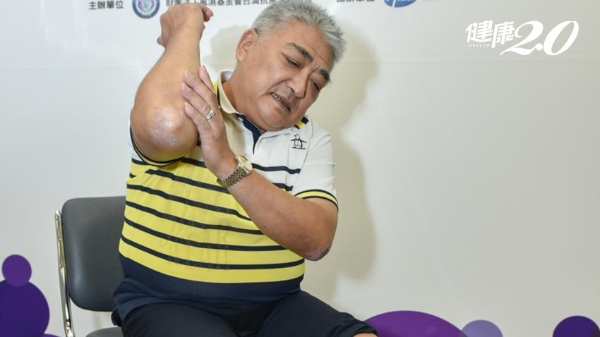 他乾癬共處35年!關節炎讓他痛到徹夜難眠 6月起健保給付新藥