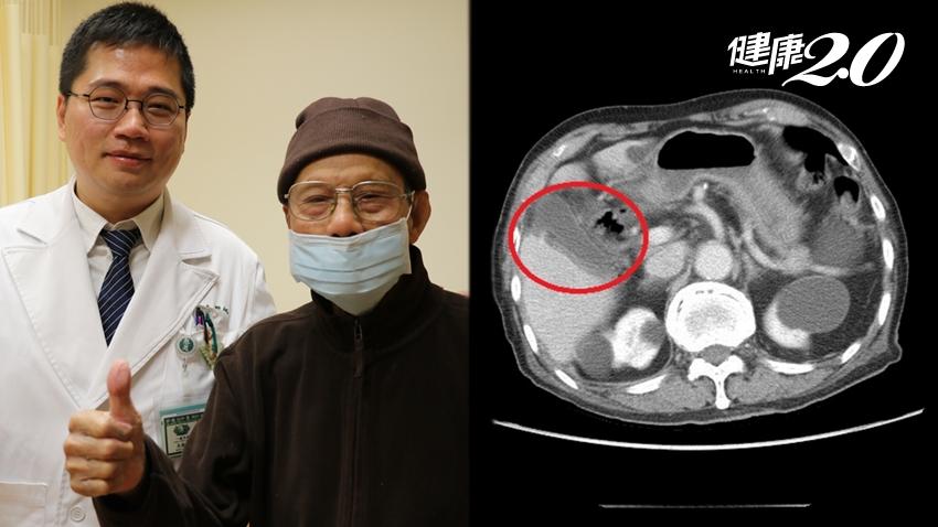 百歲人瑞切除膽囊反問「怎沒膽結石?」 醫師揭真相:無石性膽囊炎更可怕