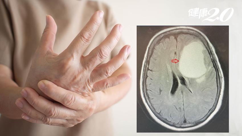她口齒不清、單側手腳無力不是中風!核磁共振揪出8公分「腦轉移腫瘤」