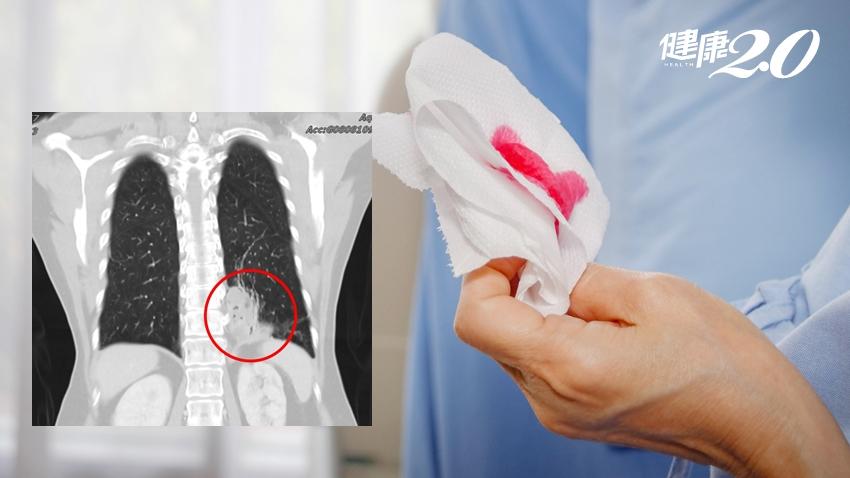 婦人咳血10年治不好、肺部黑影逐漸長大…真相大白竟是「胃血管闖進肺臟」