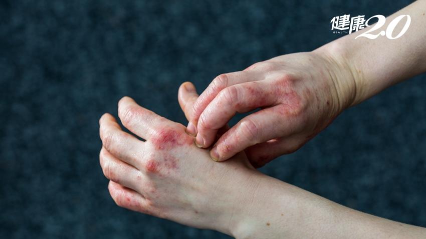 手掌起水泡、癢到睡不著!醫開換膚湯治好汗皰疹,日常4招防再發
