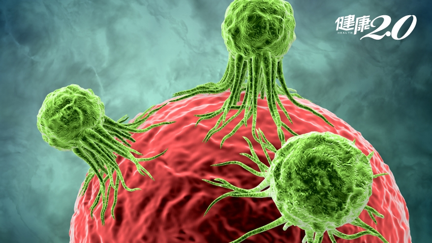 每個人體內都有癌細胞!為什麼會罹患癌症?原因在這裡