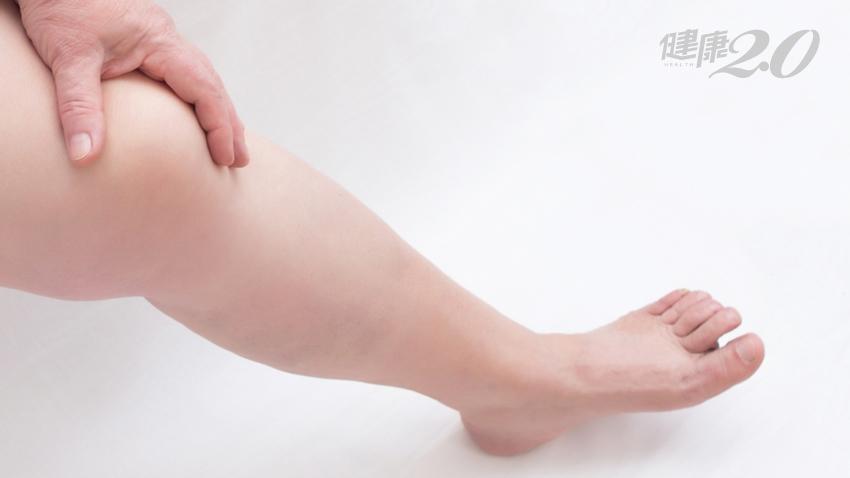 女性注意!下肢水腫痠痛、左腳比右腳腫 小心髂靜脈壓迫「腳變黑」