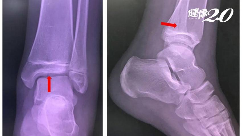 孩子扭到腳別輕忽!生長板骨折變長短腳,3天沒改善快找骨科