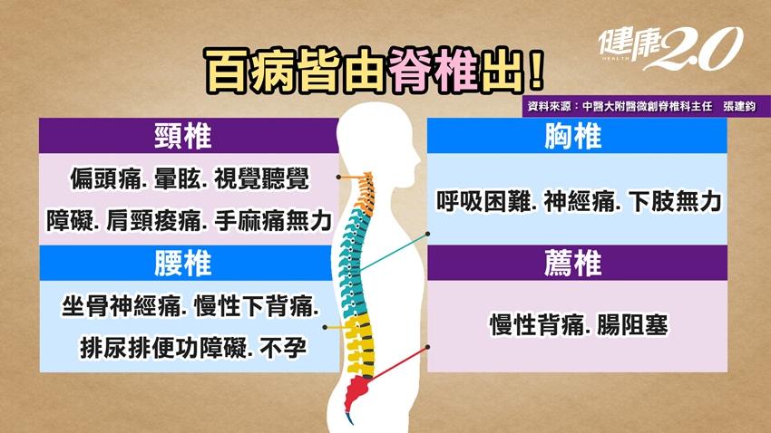 騎車這種坐姿會傷脊椎! 醫:遠離脊椎側彎日常生活中4大惡習要避免
