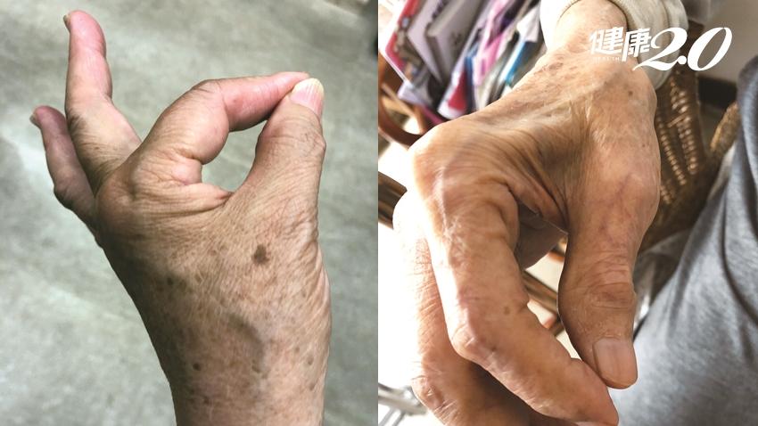 老年人才有肌少症?4個身體徵兆 代表你的肌肉正在流失