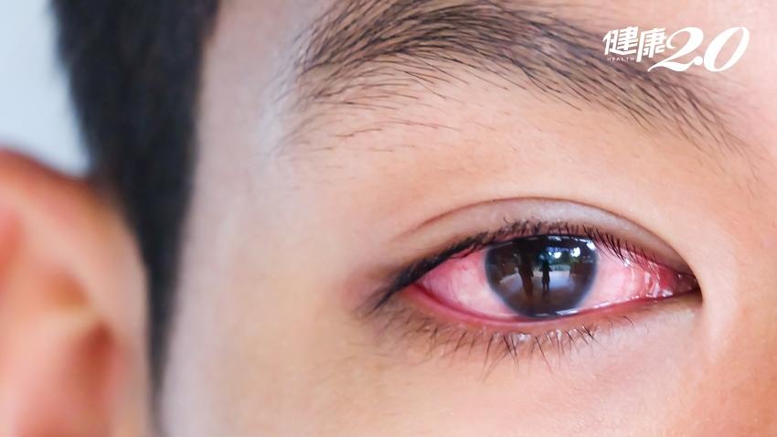 不單純只是結膜炎!眼睛反覆又紅又癢竟是鼻炎作怪