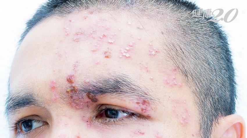 他左臉抽痛、耳鳴、長滿水泡 原來是皮蛇上身! 帶狀皰疹長在這2部位當心