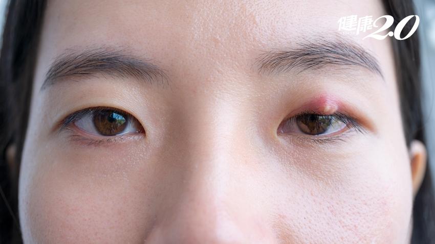 反覆長針眼怎麼辦?醫教1招預防、12種食療針眼好得快