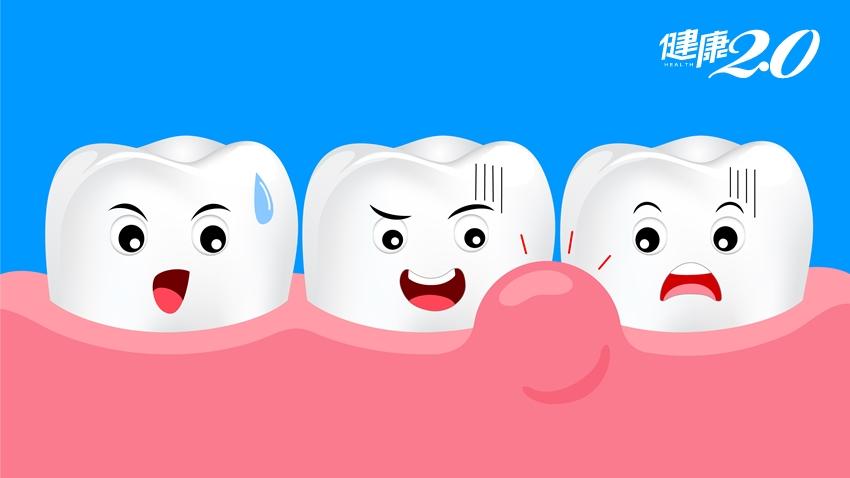 他做假牙多年後,出現牙齦腫痛還長牙包…醫師揪出「魔鬼」保留牙齒