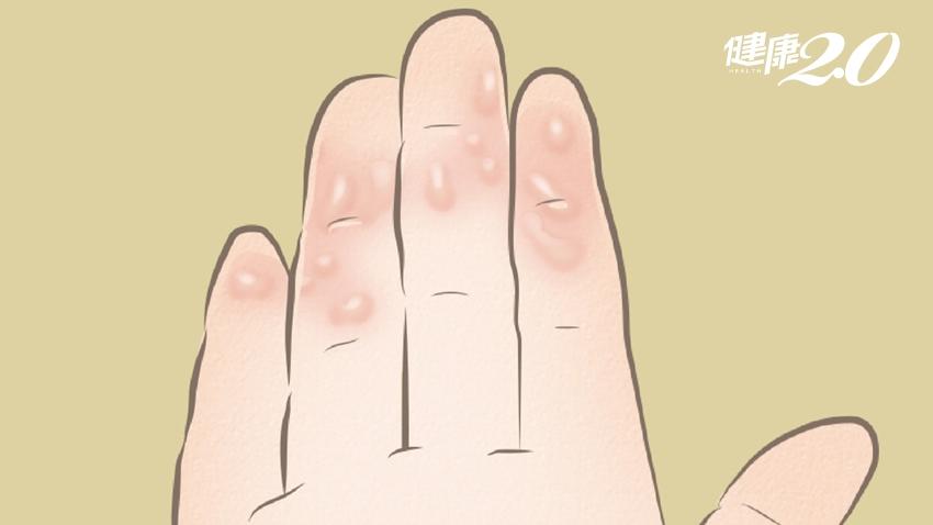 「汗皰疹」是濕疹的一種,手腳都會有!醫師告訴你「發病原因」