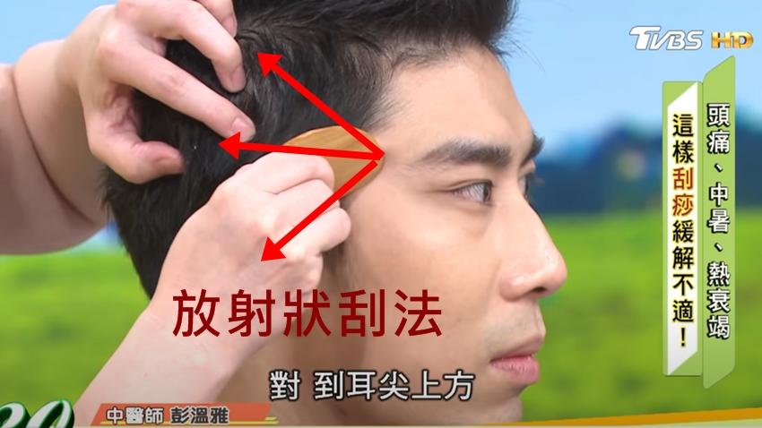 天氣熱小心誘發「頭痛」!中醫教你刮痧解頭痛,中暑刮痧別刮錯