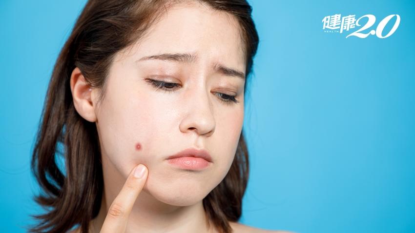 中年後怎麼又長青春痘?營養師曝「腸道壞菌引起肌膚發炎」 3招輕鬆養美肌