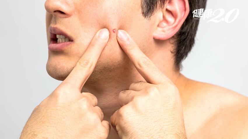 他吃「薑黃」臉頰爆痘!中醫師傳正確抗痘7招,多按曲池、神門與合谷3大抗痘穴