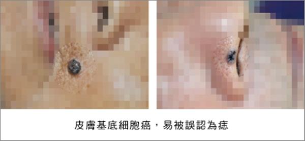 「皮膚癌前病變」常被誤認是「老人斑」!手腳肢端「黑痣」小心癌