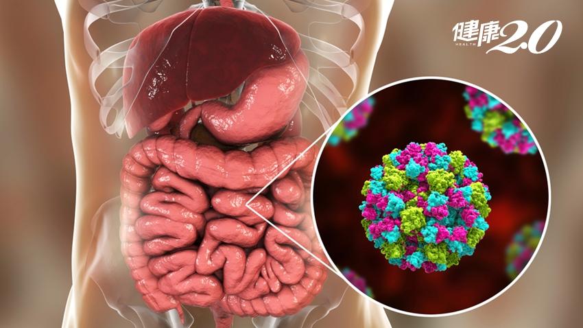 礁溪老爺164人食物中毒原因「諾羅病毒」!小心這些地方易傳染
