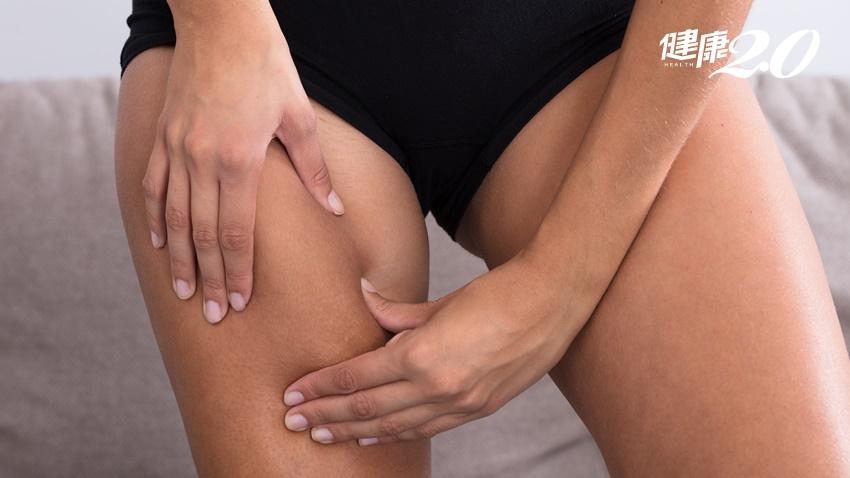 腿粗不必自卑 研究證實粗腿加上這兩種條件最長壽