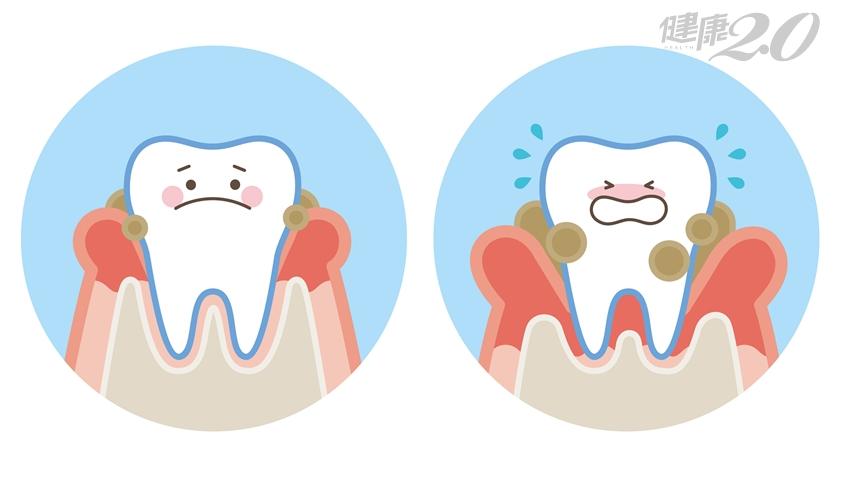 吃益生菌能改善牙周病?抗敏感牙膏對牙周病有用?牙醫:這個方法最有效