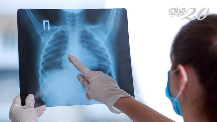 發現早期肺癌病灶不必等!利用這2項新技術切除肺結節 免去心頭大患