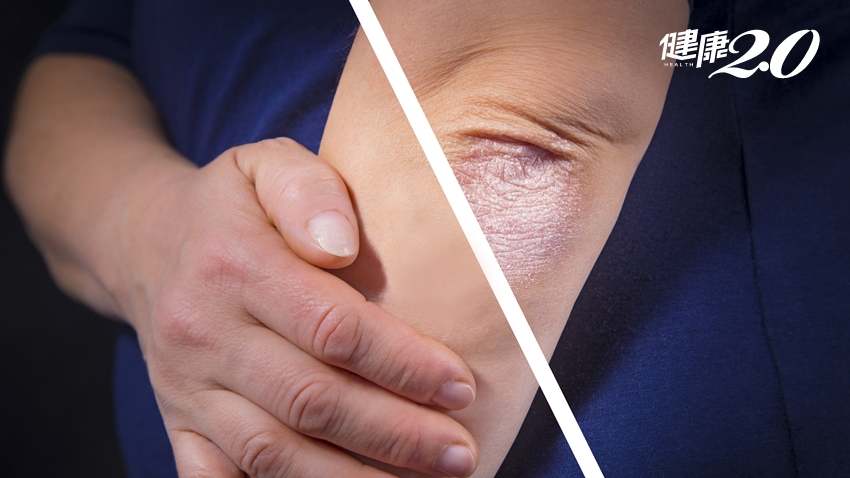 乾癬會傳染嗎?不僅長紅斑脫皮 3成患者關節痛!醫師說4種治療有效