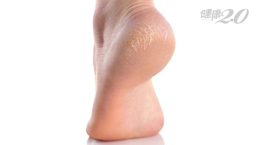 「腳後跟」乾燥粗糙,穿涼鞋愈穿愈慘!皮膚科醫師教你改善阿嬤腳