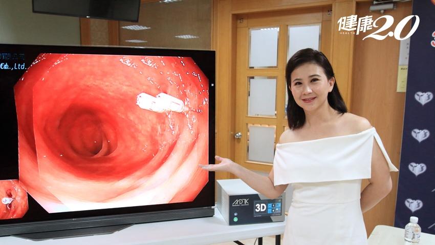 台語唱將林喬安「火燒心」怕歌喉受損 3D胃腸鏡檢查找真相