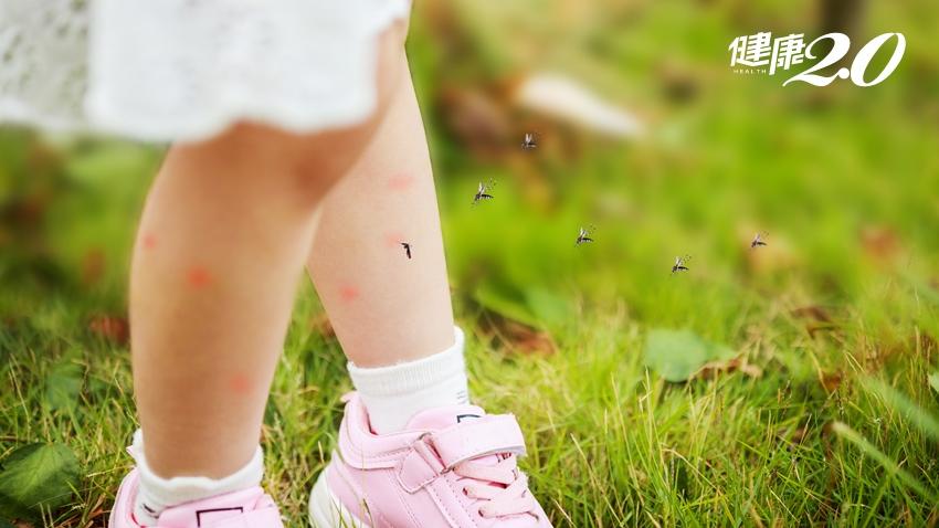 夏天最怕被叮成「紅豆腳」!中醫師推薦3款精油膏 驅蚊效果一級棒