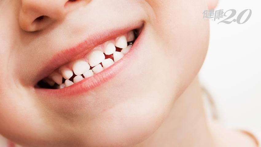 為什麼乳牙遲遲不掉?可以先拔嗎?2點判斷小孩牙齒是否有「阻生」