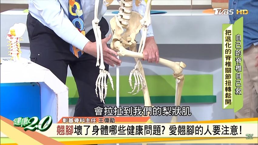 翹腳會不孕!翹腳有6大健康危害 骨科醫師公開避免傷害的祕訣